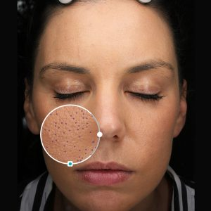 Pores being measured on VISIA®
